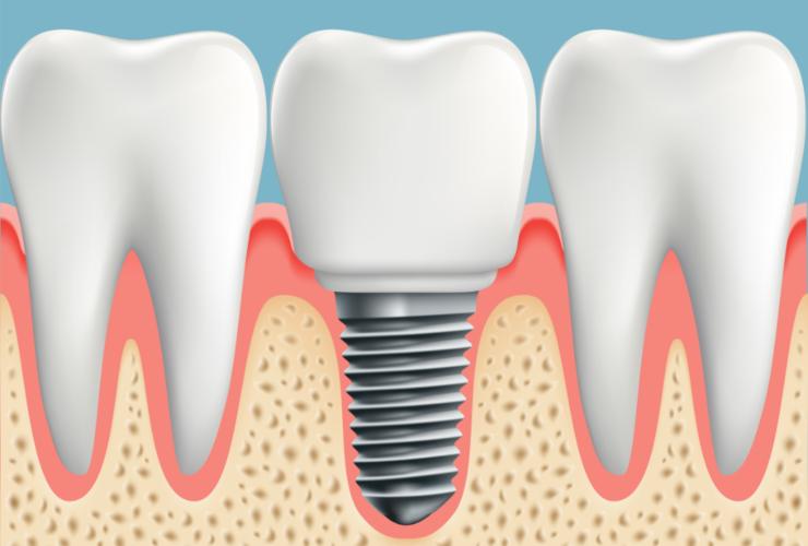 implantologia para higienistas